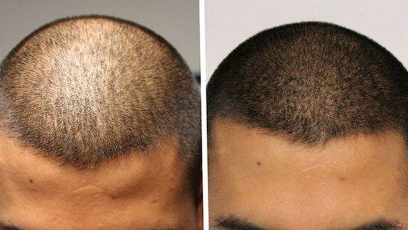Татуировка волос - микропигментация кожи головы